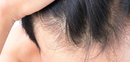 Braune Flecken am Hals Schwangerschaftsdiabetes